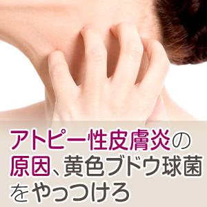 アトピー性皮膚炎の原因とは